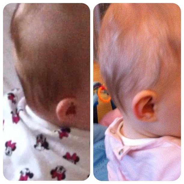 3b446283b5d3 Plagiocéphalie avant et après environ 2 mois de traitement par casque