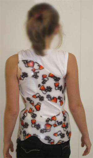 corset_scoliose_01_back_01