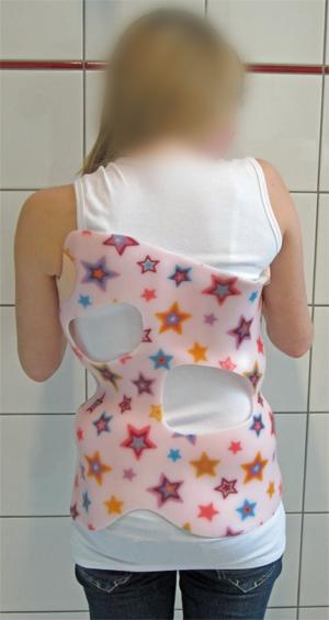 corset_scoliose_02_back_01